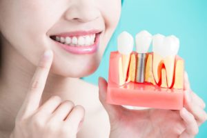 woman pointing to her teeth while holding a teeth model sample