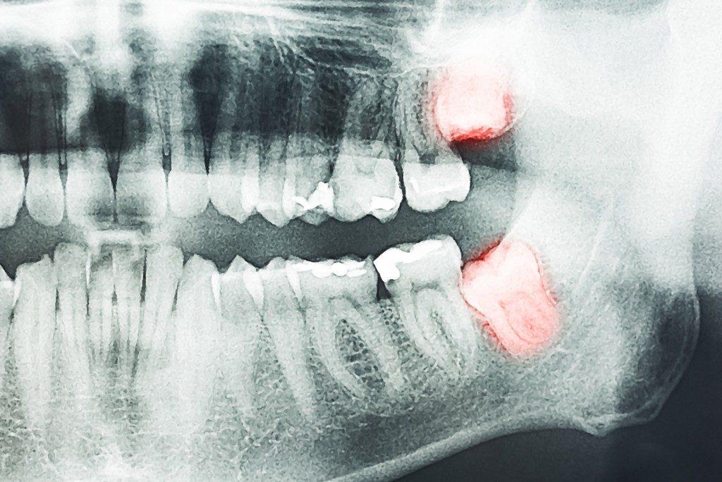Wisdom tooth xray