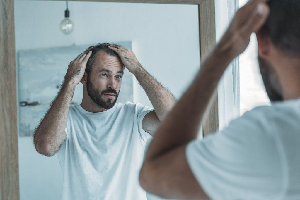 checking for hair loss